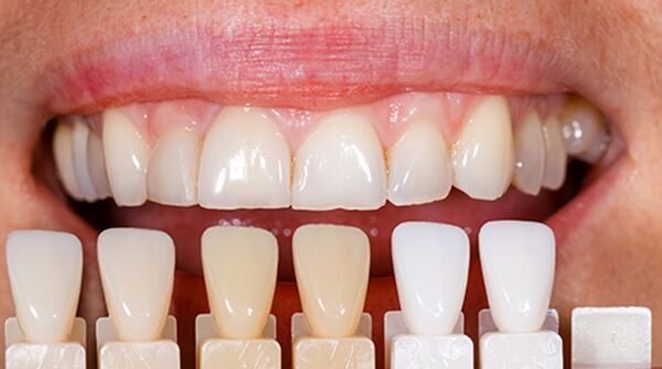 carbamide-peroxide-vs-hydrogen-peroxide-for-tooth-lightening