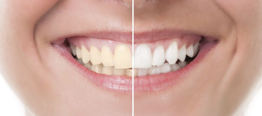 immediate-pearly-whites-bleaching-what-your-alternatives-are